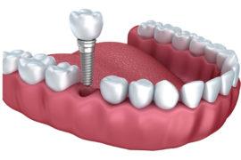 Implantate und Prothesen